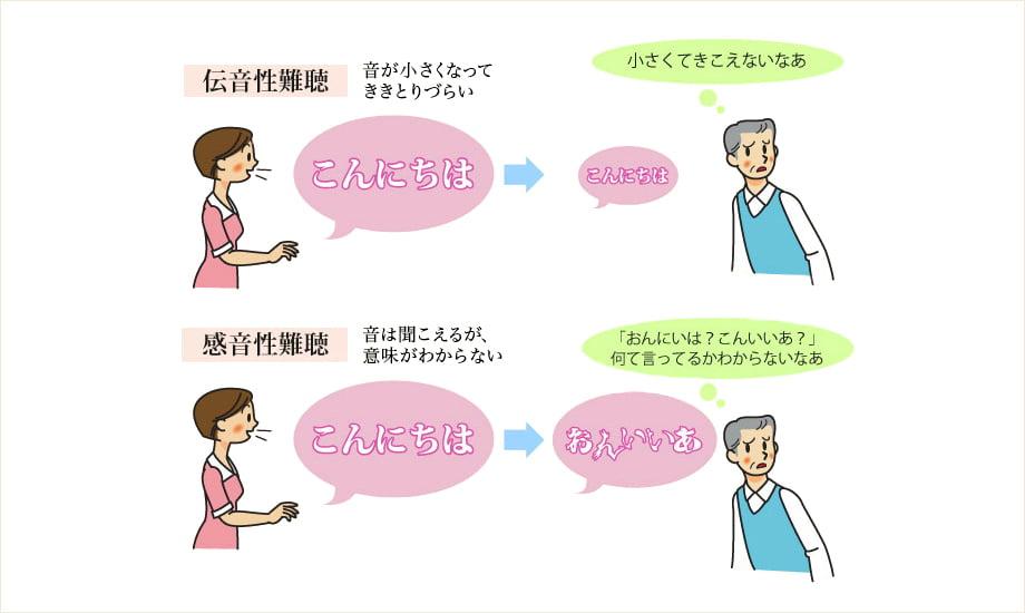 伝音性難聴と感音性難聴について